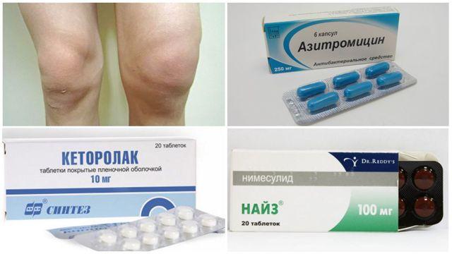 Бурсит гусиной лапки коленного сустава: симптомы и лечение анзеринового бурсита