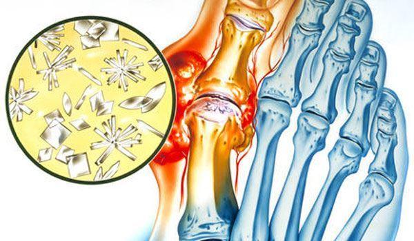 Посттравматический артрит: код МКБ-10, симптомы и лечение