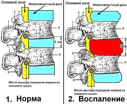 Обострение остеохондроза шейного отдела: симптомы и лечение