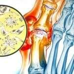 Операция при подагре на ногах: цена и особенности хирургического лечения