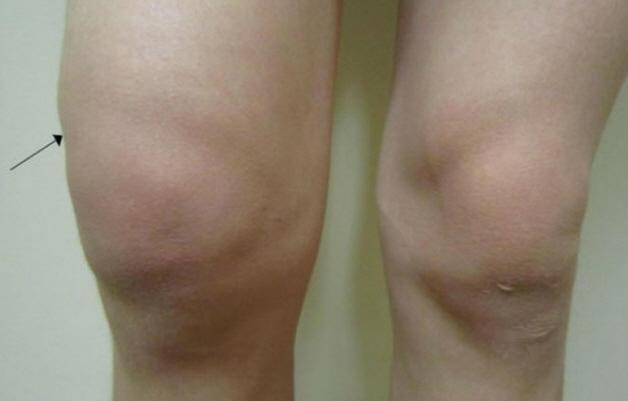 Уколы при ревматоидном артрите в сустав и внутримышечно: названия препаратов