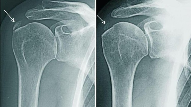 Остеопороз плечевого сустава: симптомы и лечение
