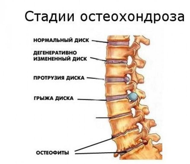 Ортопедическая подушка при шейном остеохондрозе и валик под голову: как выбрать