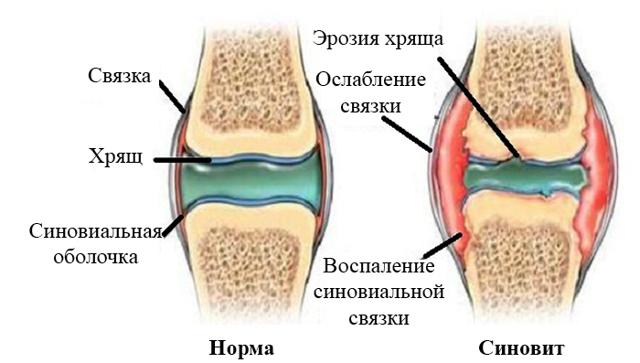 Экссудативный синовит: особенности, симптомы и лечение