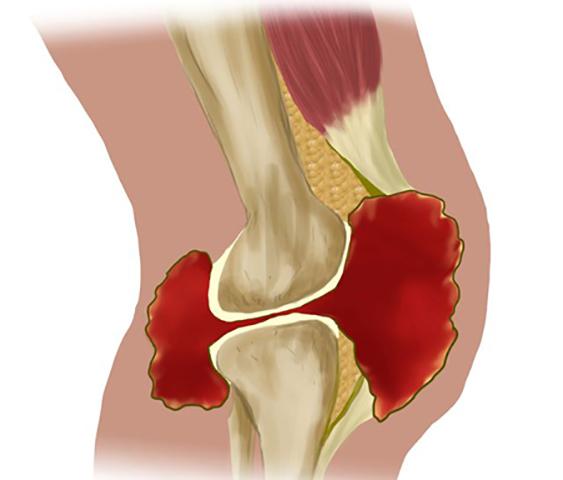 Синовит: код МКБ-10, лечение суставов, причины и симптомы (ФОТО)