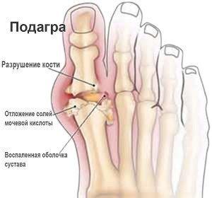 Диклофенак при подагре на ногах: инструкция по применению уколов и мази