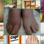 Лечение подагры пищевой содой: как принимать, метод Неумывакина