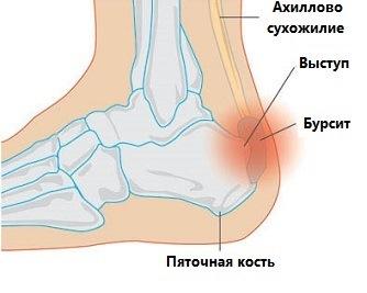 Бурсит голеностопного сустава: лечение и симптомы (ФОТО)
