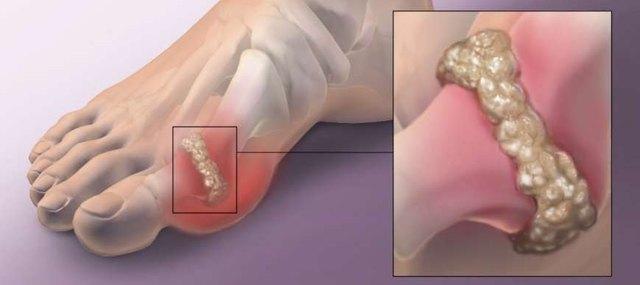 Исследование синовиальной жидкости при заболеваниях суставов: виды анализов и их расшифровка