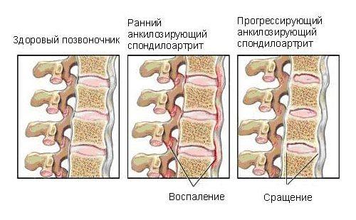 Какой врач лечит болезнь Бехтерева: специалисты, симптоматика и диагностика заболевания