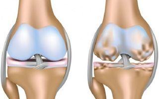 Деформирующий артроз коленного сустава: симптомы и лечение, стадии гонартроза