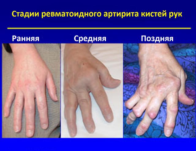 Артрит кистей рук: симптомы (ФОТО) и методы лечения