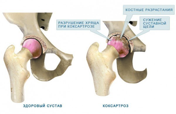 Коксартроз тазобедренного сустава 2 степени: лечение без операции, симптомы и диагностика
