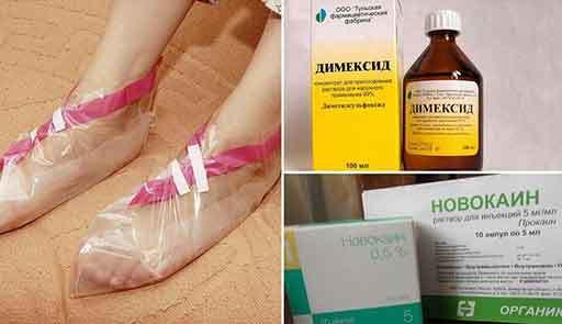 Компрессы при подагре для снятия опухоли и боли: эффективные рецепты