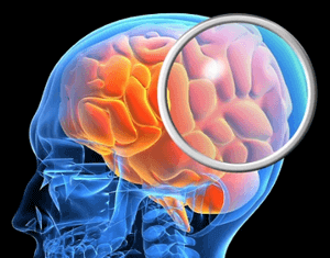 Субдуральная гигрома головного мозга у ребенка: методы лечения, код по МКБ-10