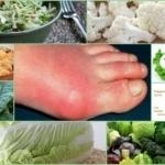 Капуста при подагре: можно ли есть квашеную, морскую, цветную капусту