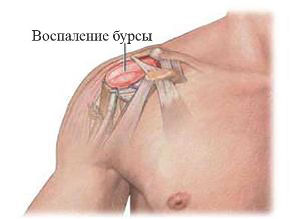 Субдельтовидный бурсит плечевого сустава: причины, симптомы и лечение