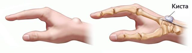 Гигрома после операции: реабилитация и рецидив после удаления кисты