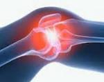 Хронический синовит: симптомы, диагностика и лечение