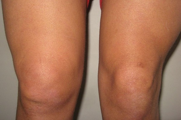 Синовит коленного сустава - симптомы лечение патологии