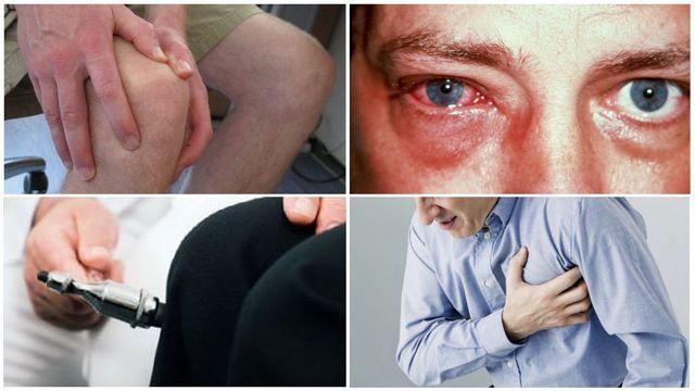 Осложнения ревматоидного артрита на сердце и легкие: исход болезни
