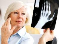 Методжект при ревматоидном артрите: отзывы и инструкция по применению