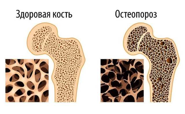 Остеопороз коленного сустава: симптомы и лечение 1, 2 и 3 степени болезни