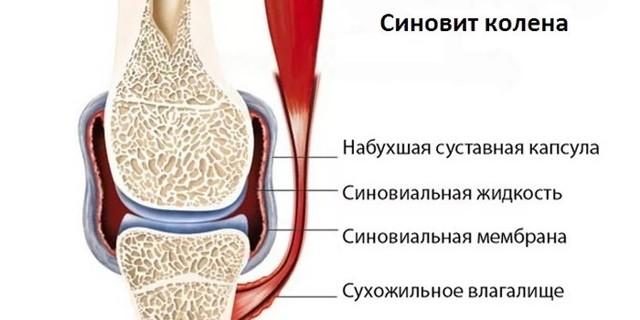 Вторичный синовит: причины, симптомы и лечение реактивного синовита
