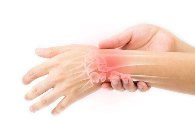 Синовит лучезапястного сустава: признаки и лечение