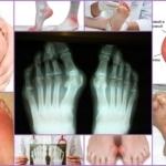 Анализы при подагре: критерии дифференциальной диагностики