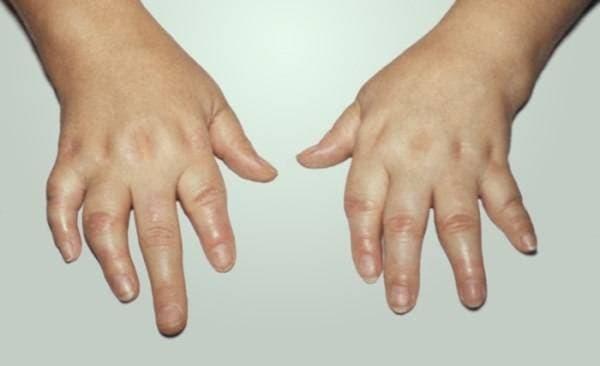 Хламидийный артрит: симптомы и препараты для лечения