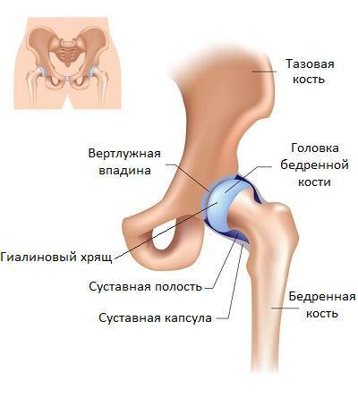 Синовит тазобедренного сустава у детей и взрослых: симптомы и лечение