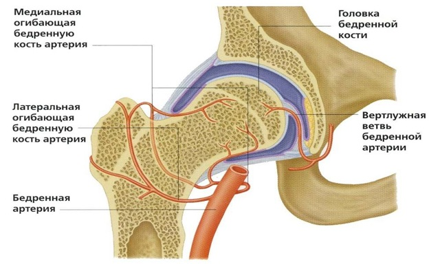 Диспластический коксартроз тазобедренного сустава: код МКБ-10, лечение 2 и 3 степени