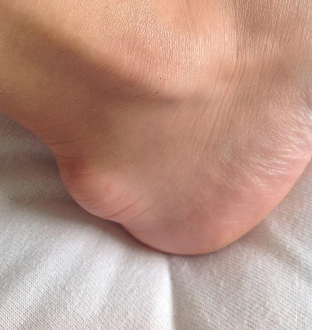 Мазь от бурсита локтевого и коленного сустава: обзор лучших гелей и кремов