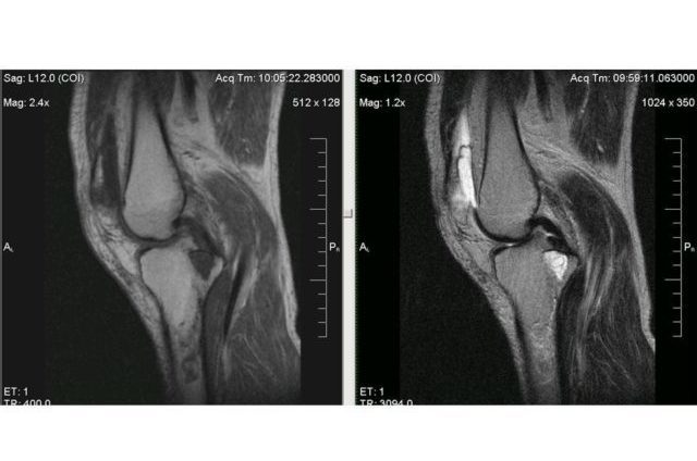 Супрапателлярный бурсит коленного сустава: симптомы и лечение воспаления бурсы
