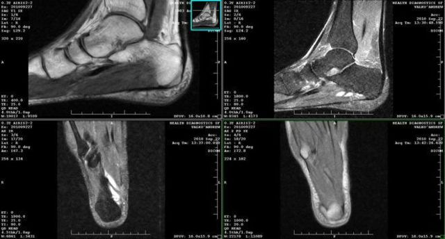 Артрит пятки: причины, симптомы и методы лечения