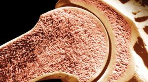 Остеопения и остеопороз: в чем разница между заболеваниями