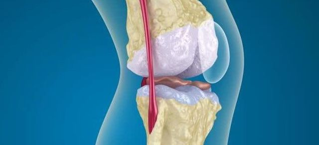 Рентген при остеопорозе: как называется диагностика признаков на снимке