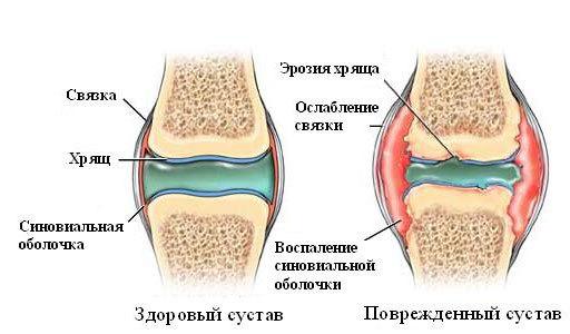 Аутоиммунный артрит: причины, симптомы и методы лечения
