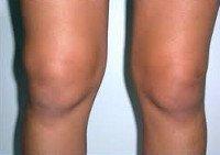 Синовит коленного сустава: симптомы и лечение, код по МКБ-10
