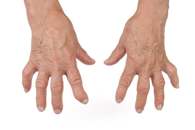 Остеопороз у мужчин: симптомы и лечение, причины возникновения