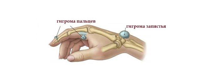 Гигрома у ребенка (ФОТО): лечение и удаление у детей, советы Комаровского