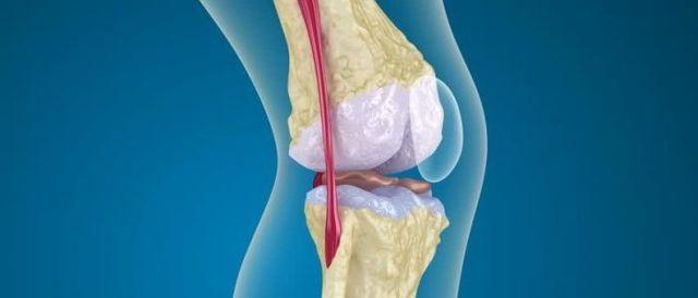 Околосуставной остеопороз кистей рук и стопы: лечение и прогноз