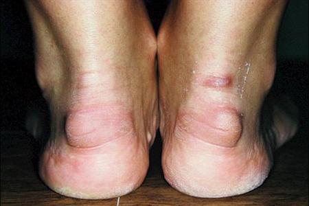 Бурсит ахиллова сухожилия: симптомы (ФОТО), лечение препаратами и народными средствами