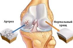 Хондропротекторы при артрозе коленного сустава: эффективные препараты в мазях, таблетках и уколах
