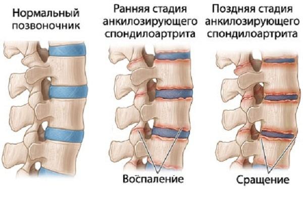 Физические упражнения при болезни Бехтерева в домашних условиях: гимнастика, ЛФК и зарядка