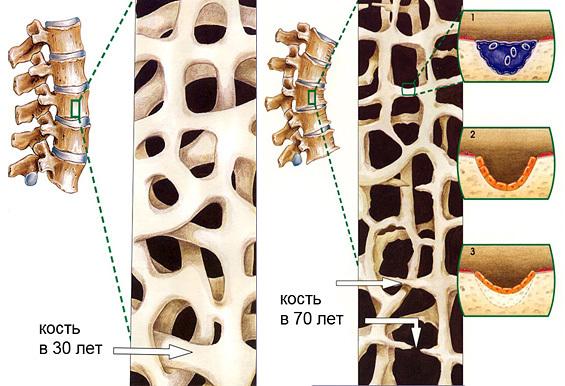 Системный остеопороз: код по МКБ-10, лечение и симптомы