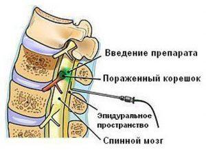 Блокада при остеохондрозе поясничного отдела и шейного: новокаиновая и паравертебральная, отзывы
