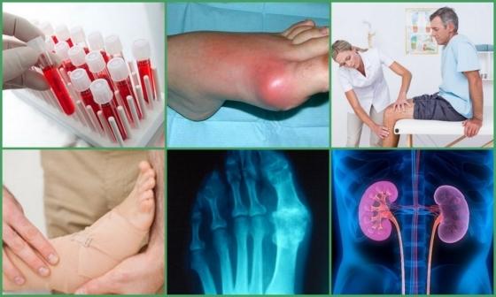 Подагра у женщин: лечение, симптомы (ФОТО) и первые признаки