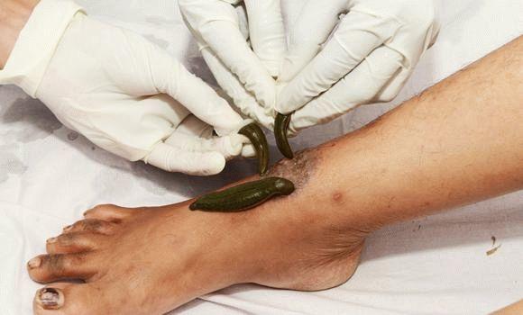 Пиявки при артрите: правила постановки и отзывы о лечении